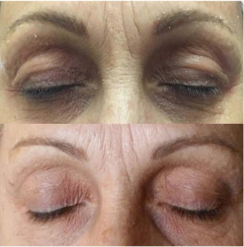PlasmAge szemhéjplasztika előtt és után