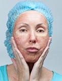 Ez történik, ha savval kenegeted az arcodat – kémiai hámlasztó teszt